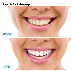 https://willgrelladds.com/wp-content/uploads/2017/02/Teeth-Whitening.jpg